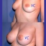 Esempio di seno rifatto prima e dopo