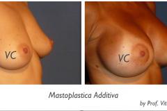 chirurgia_aumentativa_seno