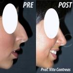 Foto Rinoplastica prima e dopo