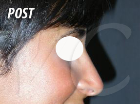 rinoplastica-post-1