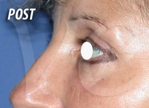 Blefaroplastica, Chirurgia delle Palpebre