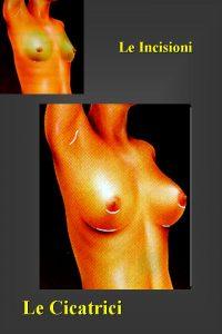 chirurgia_del_seno