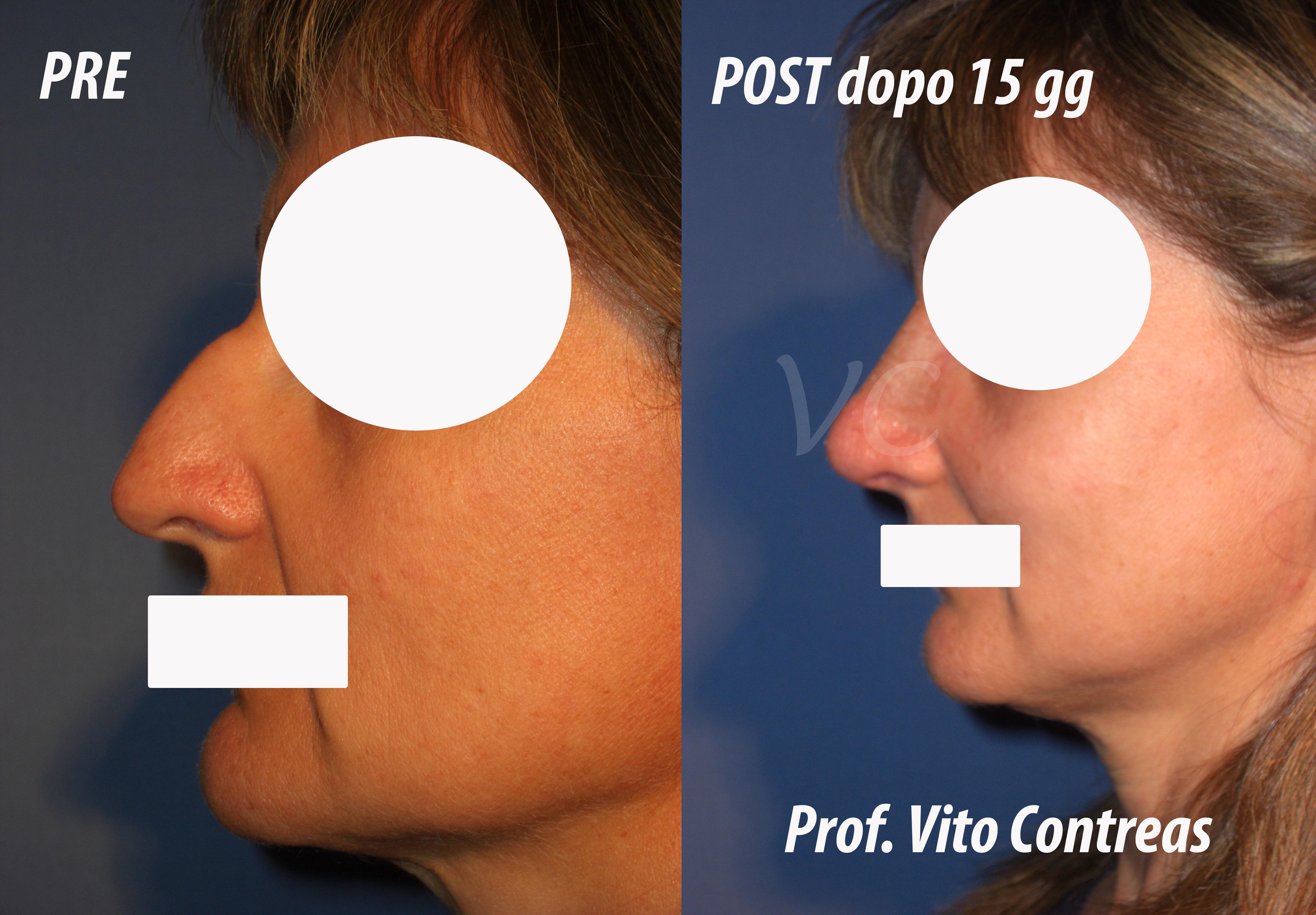 chirurgia_rinoplastica_roma