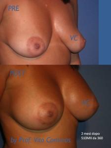 ipotrofia_chirurgia_seno_additiva