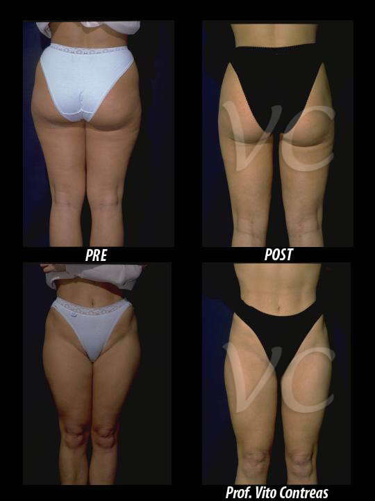 liposuzione_chirurgia_roma
