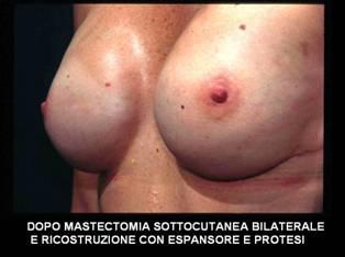 mastoplastica ricostruttiva ricostruzione del seno