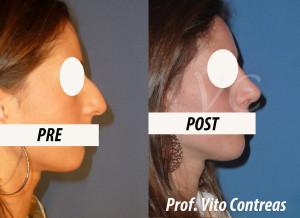 rinosettoplastica_chirurgia_roma