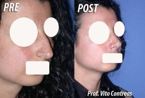 rinosettoplastica_roma