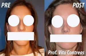 rinosettoplastica_roma_chirurgia