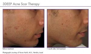 cicatrici_acne
