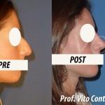 foto_rinoplastica_prima_dopo
