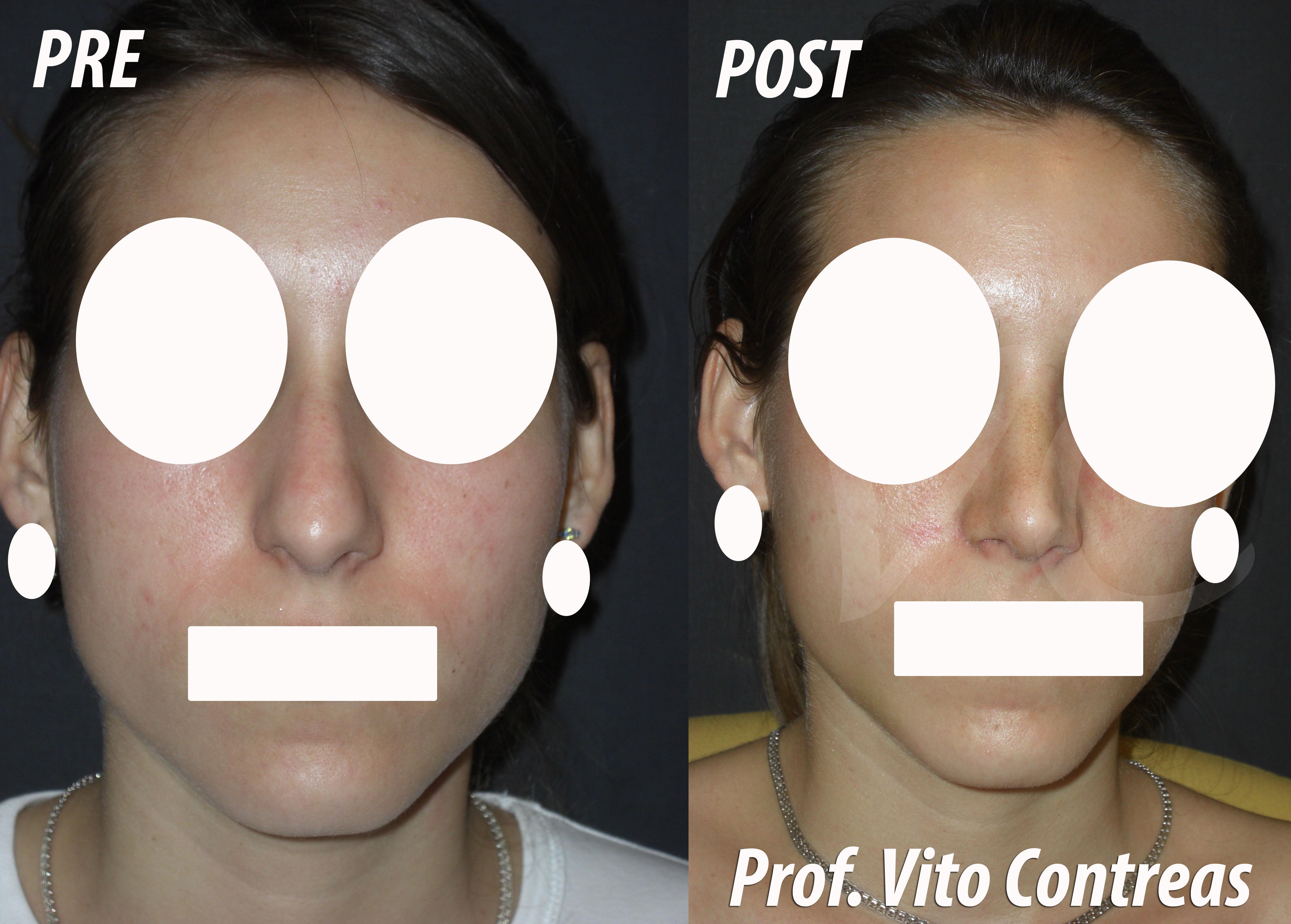 Foto Rinoplastica prima e dopo l'intervento chirurgico