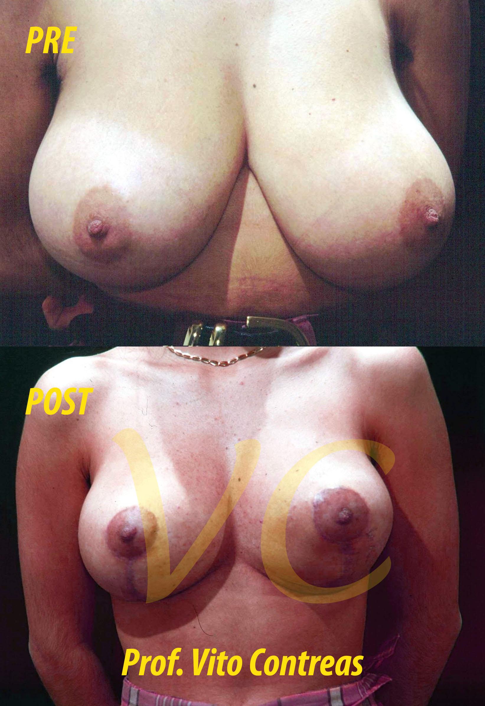 Foto di una Mastoplastica Riduttiva prima e dopo l'intervento chirurgico