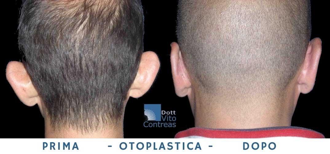 chirurgia orecchio prima e dopo