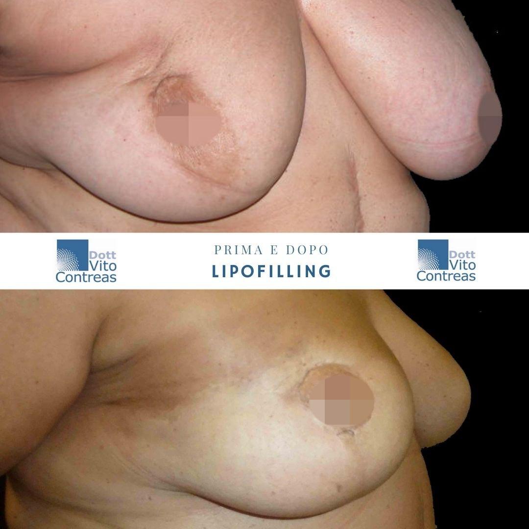 lipofilling seno prima e dopo