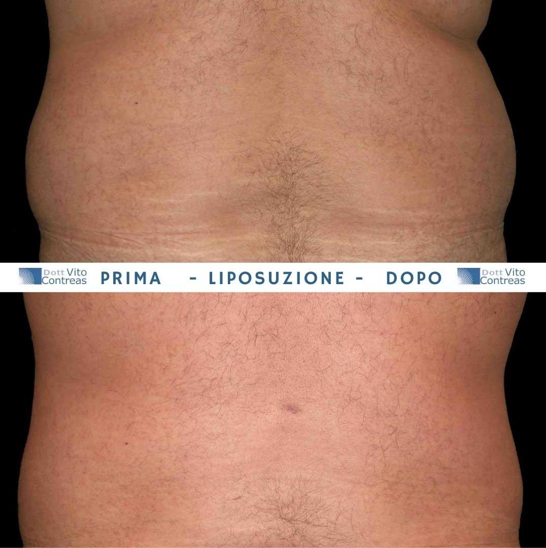 liposuzione maschile prima e dopo