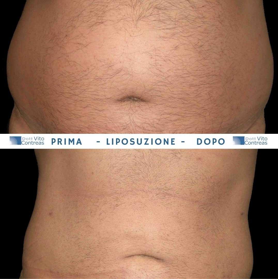 liposuzione uomo prima e dopo