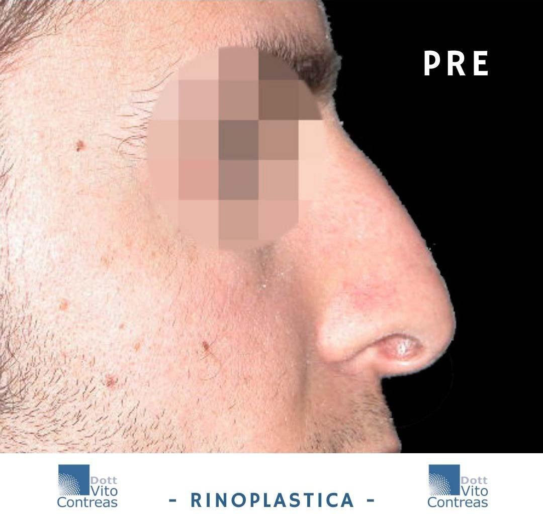 rinoplastica pre home